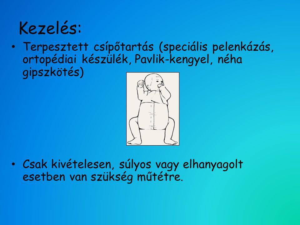 Kezelés: Terpesztett csípőtartás (speciális pelenkázás, ortopédiai készülék, Pavlik-kengyel, néha gipszkötés)