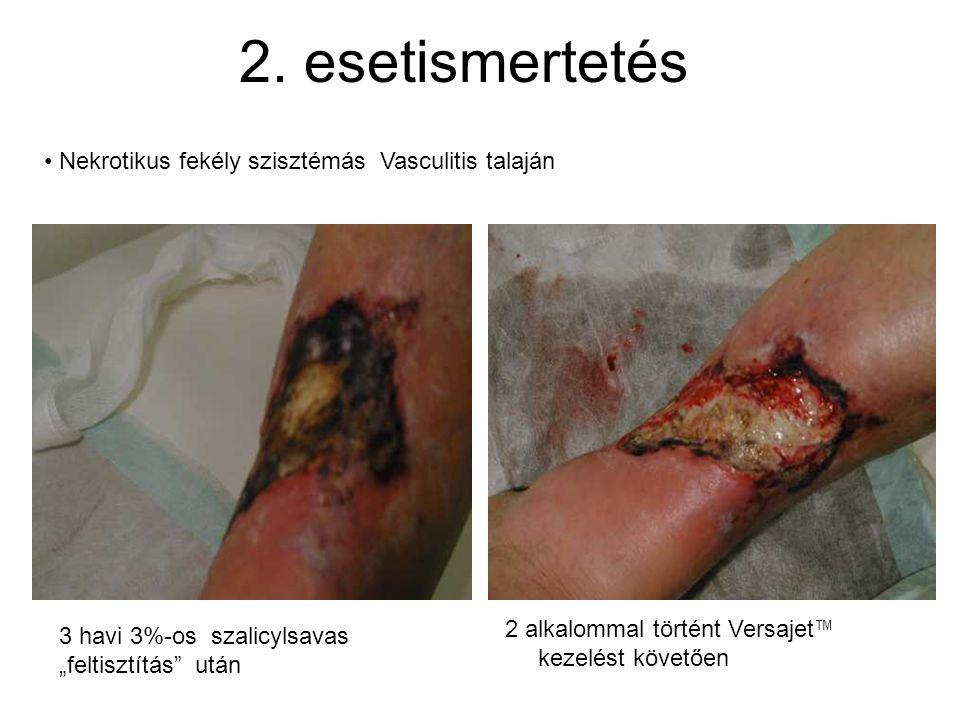 2. esetismertetés Nekrotikus fekély szisztémás Vasculitis talaján