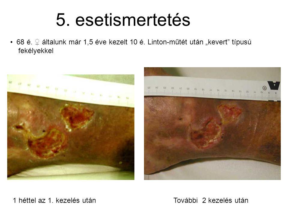 """5. esetismertetés 68 é. ♀ általunk már 1,5 éve kezelt 10 é. Linton-műtét után """"kevert típusú fekélyekkel."""