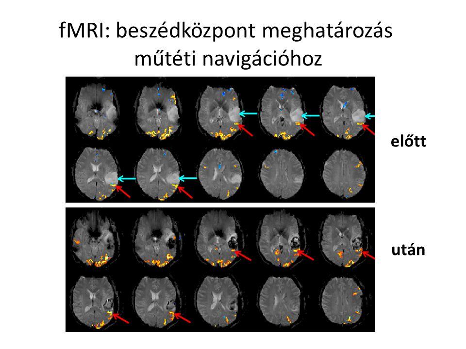 fMRI: beszédközpont meghatározás műtéti navigációhoz