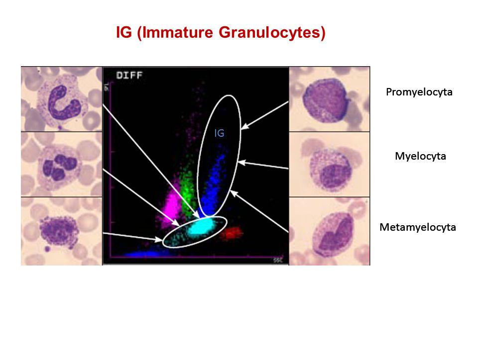 IG (Immature Granulocytes)