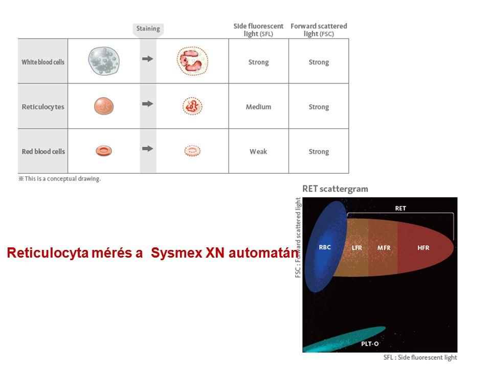 Reticulocyta mérés a Sysmex XN automatán