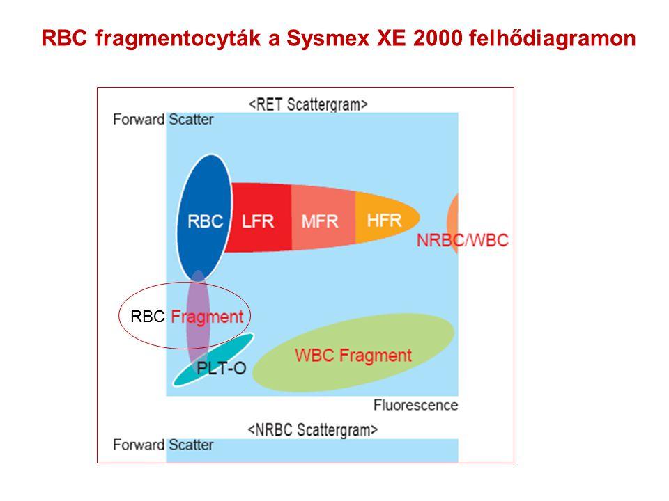 RBC fragmentocyták a Sysmex XE 2000 felhődiagramon