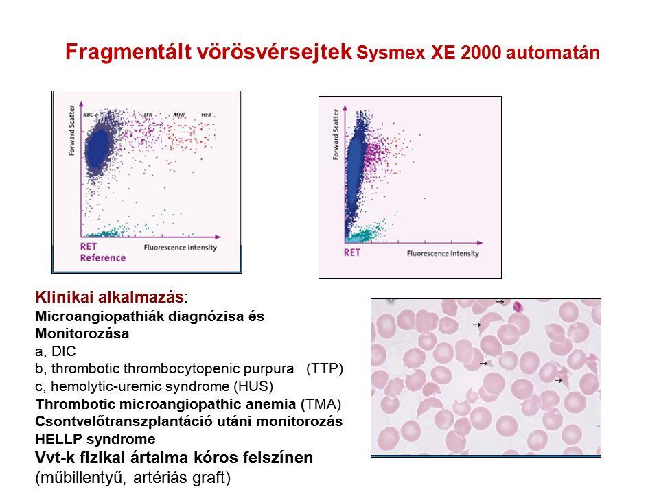 Fragmentált vörösvérsejtek Sysmex XE 2000 automatán