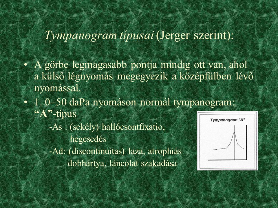 Tympanogram típusai (Jerger szerint):
