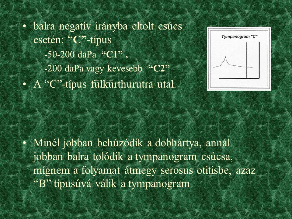 balra negatív irányba eltolt csúcs esetén: C -típus