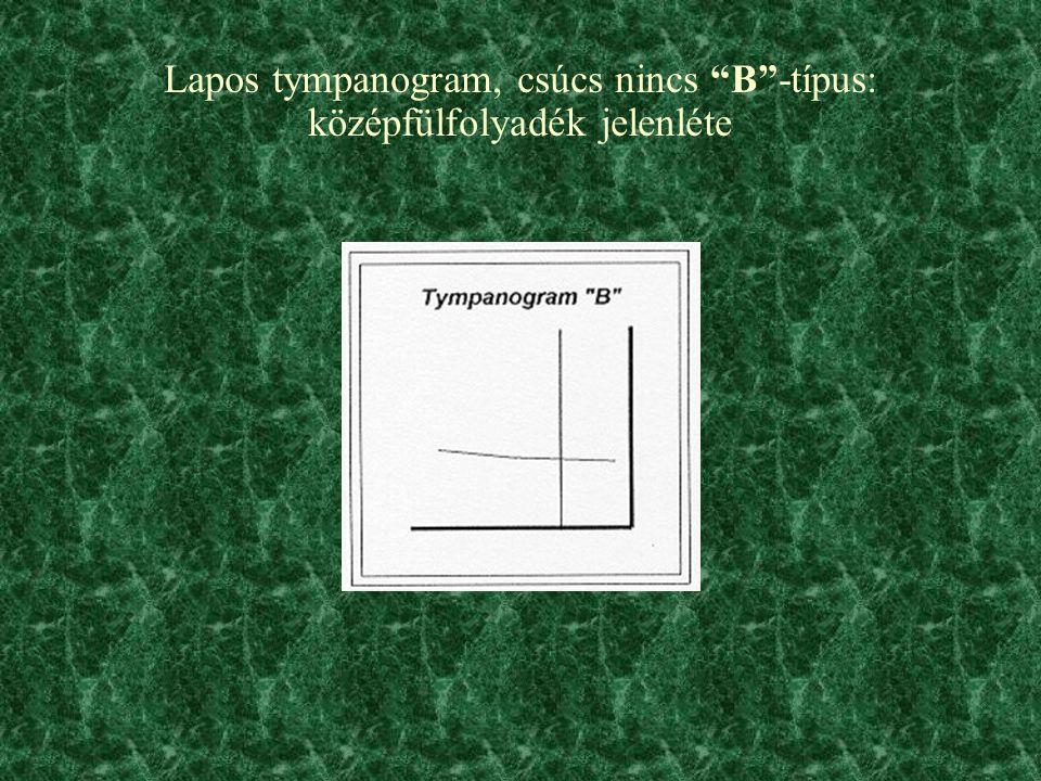 Lapos tympanogram, csúcs nincs B -típus: középfülfolyadék jelenléte