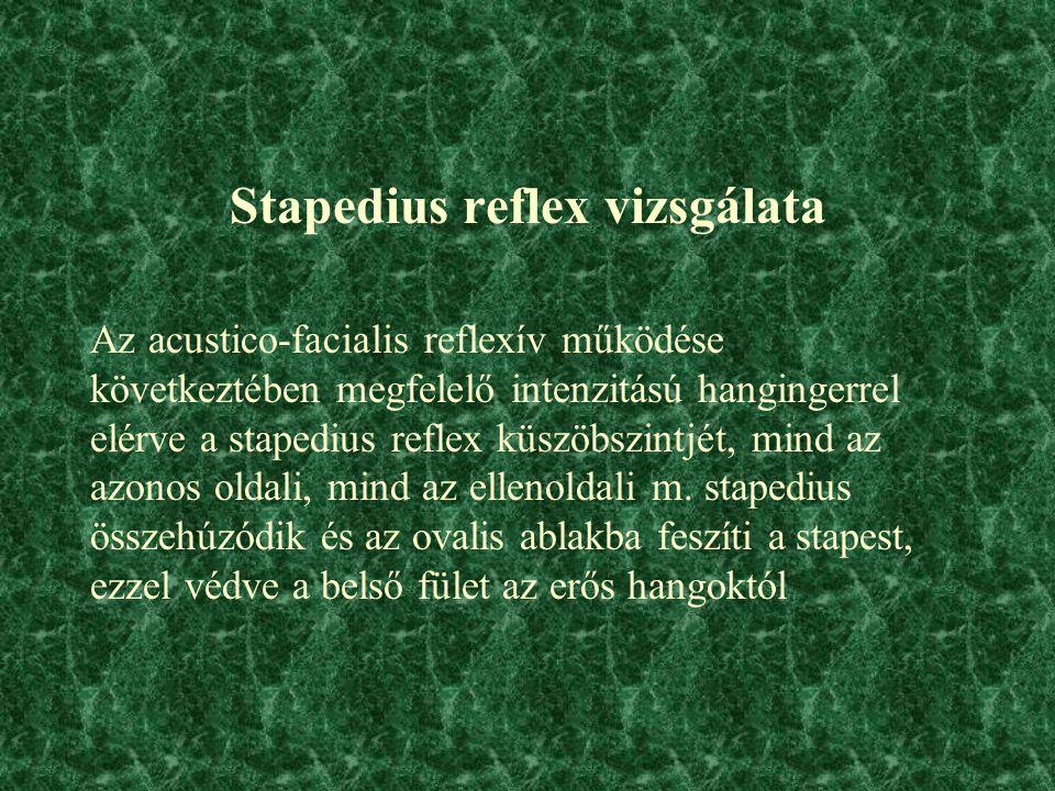 Stapedius reflex vizsgálata