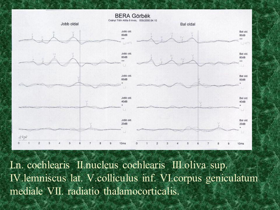 I. n. cochlearis II. nucleus cochlearis III. oliva sup. IV