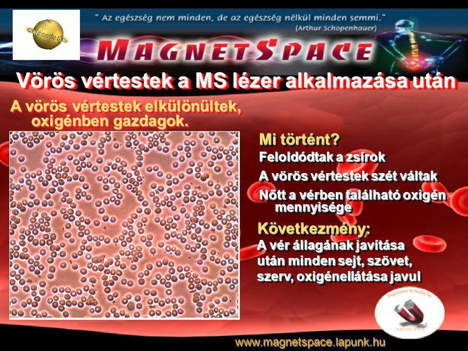 Vörös vértestek a MS lézer alkalmazása után