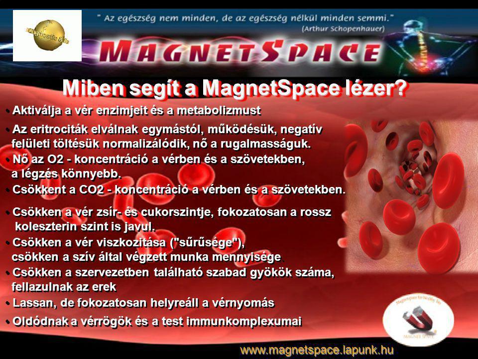 Miben segít a MagnetSpace lézer