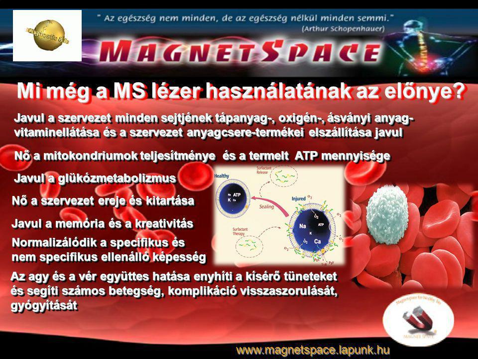 Mi még a MS lézer használatának az előnye