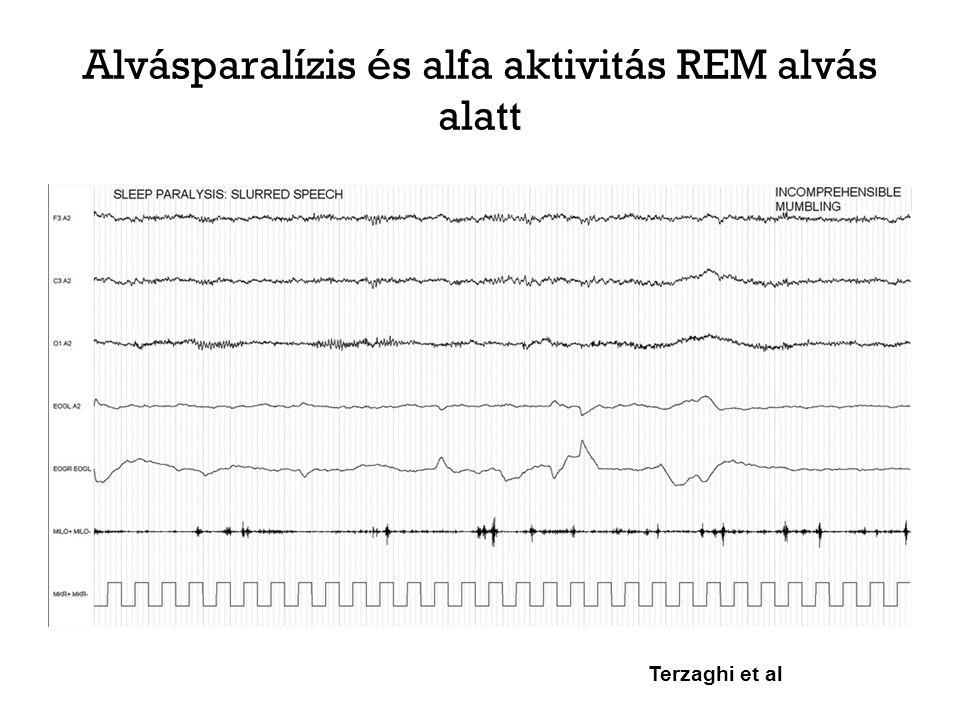 Alvásparalízis és alfa aktivitás REM alvás alatt