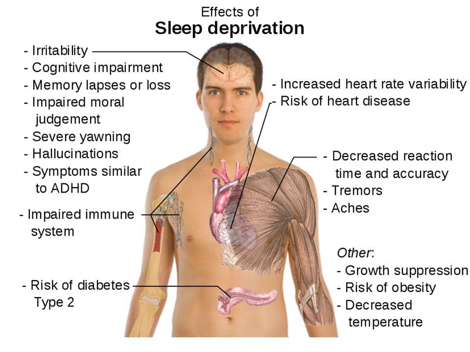 Magatartászavaros gyerekek – elégtelen alvás