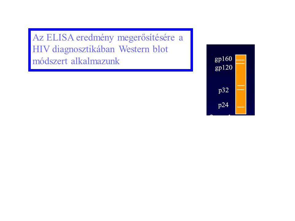 Az ELISA eredmény megerősítésére a HIV diagnosztikában Western blot módszert alkalmazunk