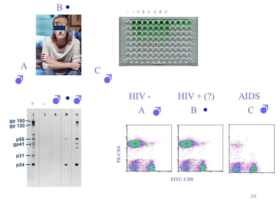     B A C   HIV - HIV + ( ) AIDS  C A B  + - 39