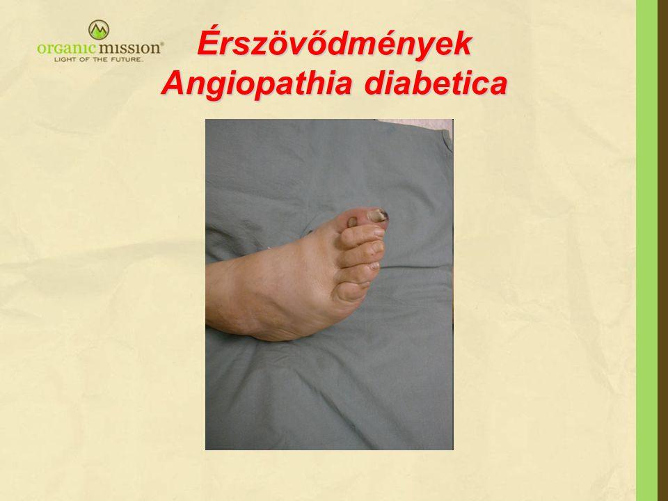 Érszövődmények Angiopathia diabetica