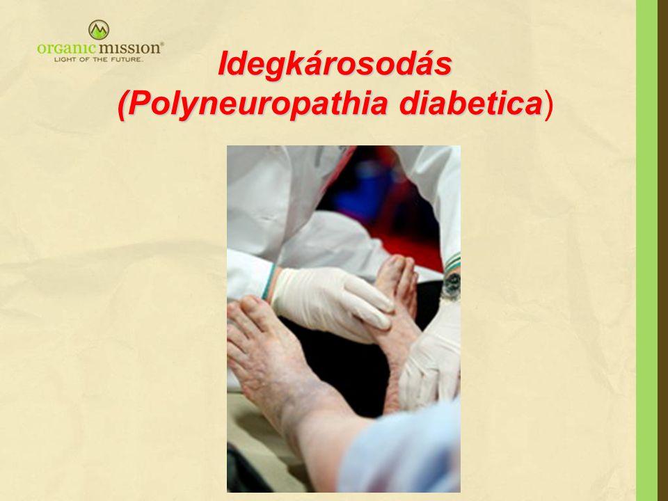 Idegkárosodás (Polyneuropathia diabetica)
