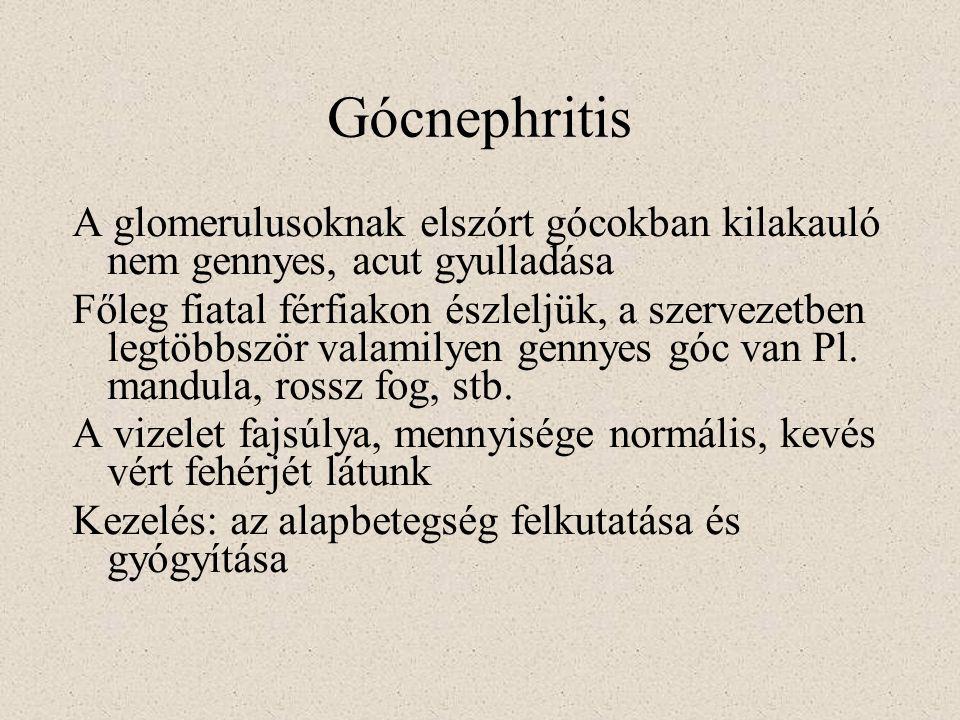 Gócnephritis A glomerulusoknak elszórt gócokban kilakauló nem gennyes, acut gyulladása.