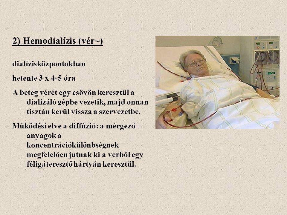 2) Hemodialízis (vér~)
