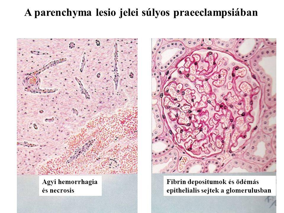 A parenchyma lesio jelei súlyos praeeclampsiában