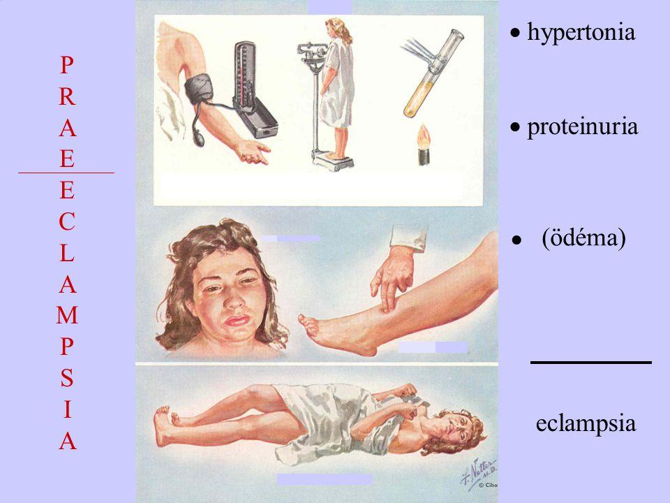 P R A E C L M S I (ödéma)  hypertonia  proteinuria  eclampsia