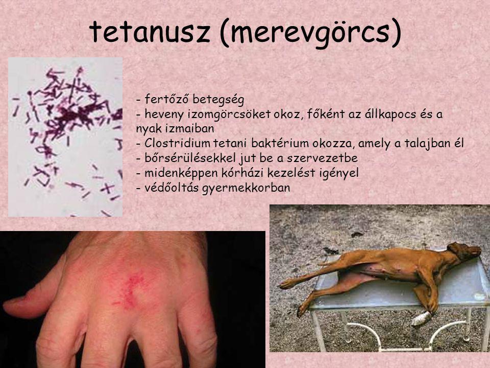 tetanusz (merevgörcs)