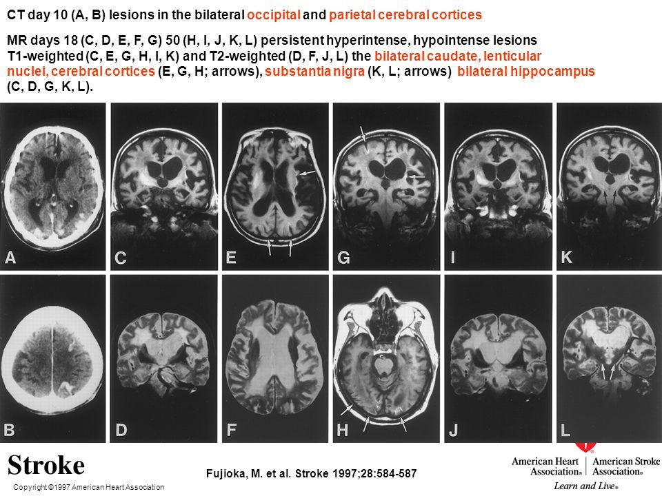 CT day 10 (A, B) lesions in the bilateral occipital and parietal cerebral cortices