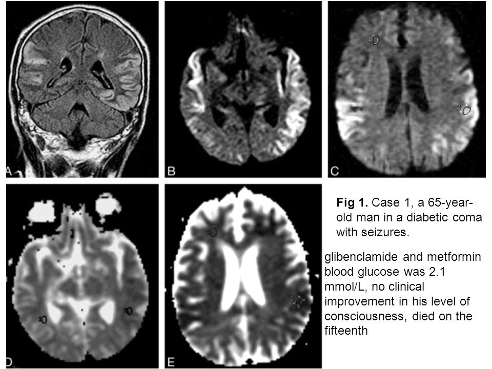 Fig 1. Case 1, a 65-year-old man in a diabetic coma with seizures.