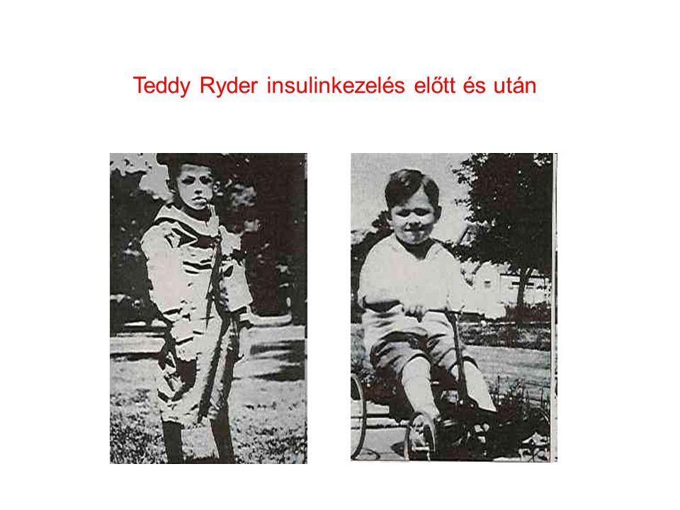 Teddy Ryder insulinkezelés előtt és után