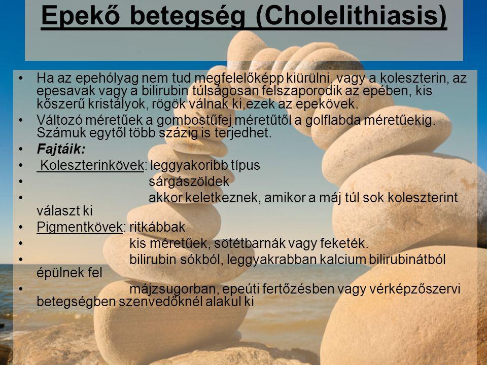 Epekő betegség (Cholelithiasis)