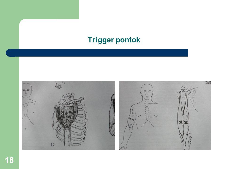 Trigger pontok