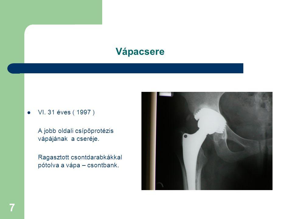 Vápacsere VI. 31 éves ( 1997 ) A jobb oldali csípőprotézis vápájának a cseréje.