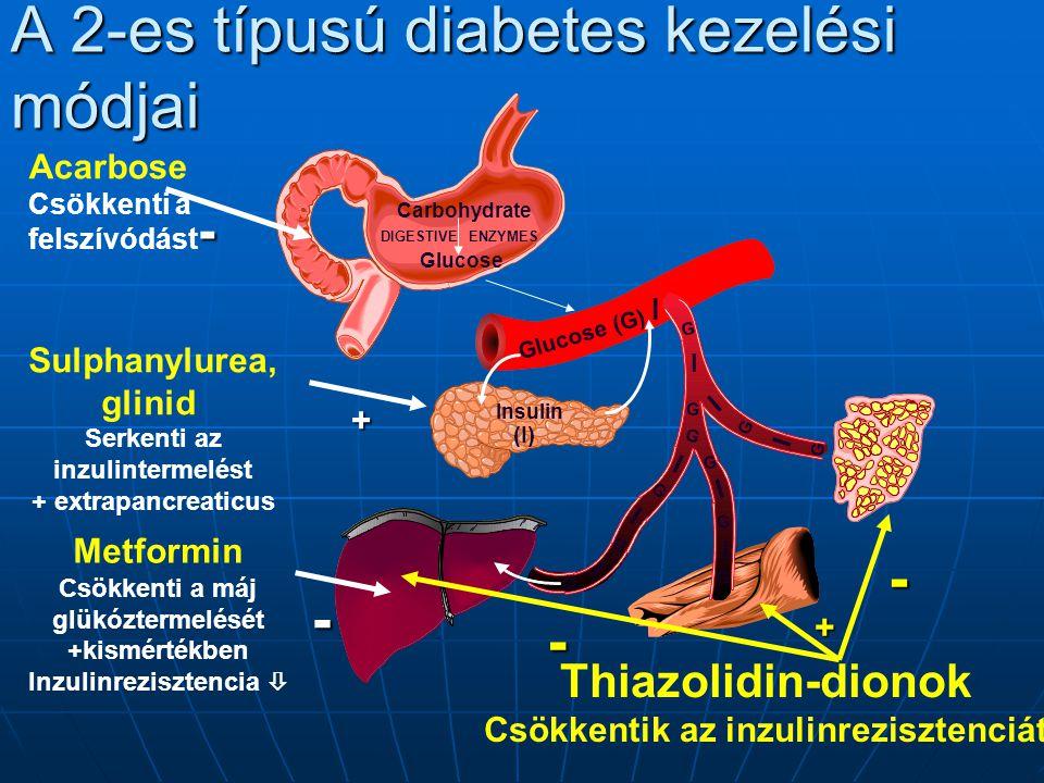 A 2-es típusú diabetes kezelési módjai