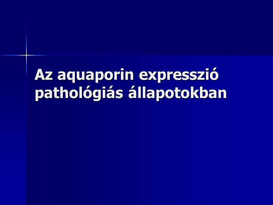 Az aquaporin expresszió pathológiás állapotokban