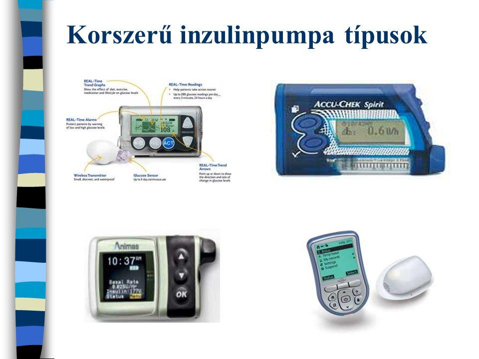 Korszerű inzulinpumpa típusok