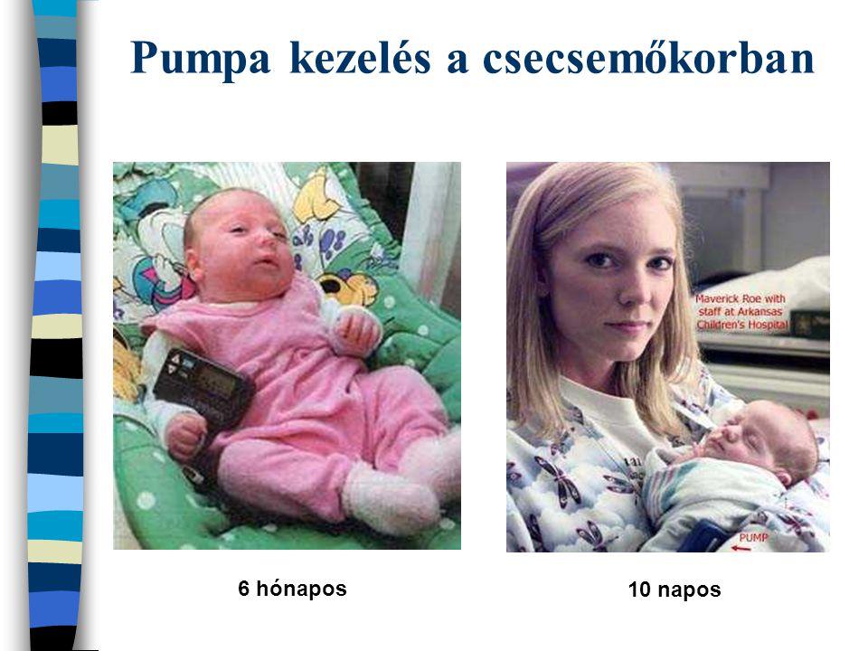 Pumpa kezelés a csecsemőkorban