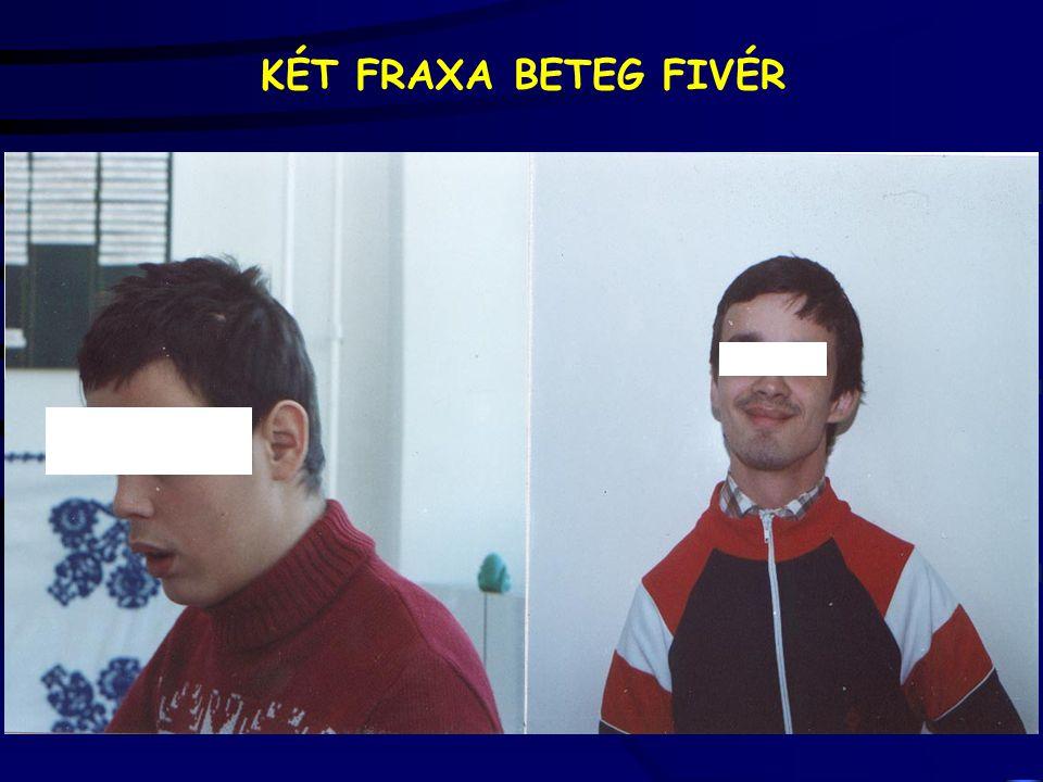 KÉT FRAXA BETEG FIVÉR