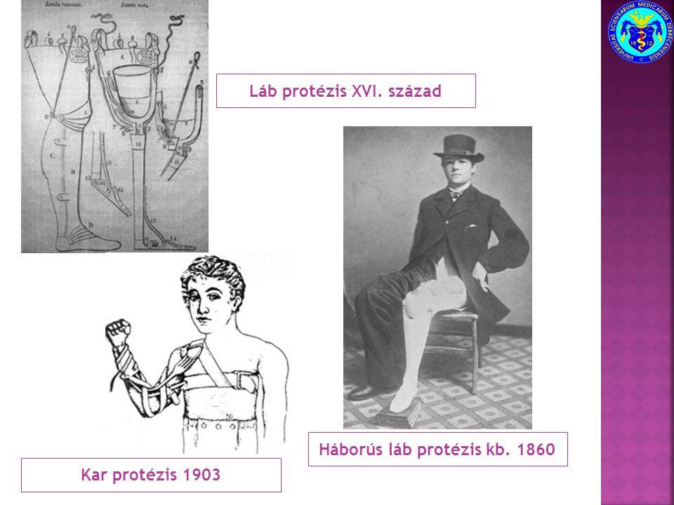 Láb protézis XVI. század Háborús láb protézis kb. 1860