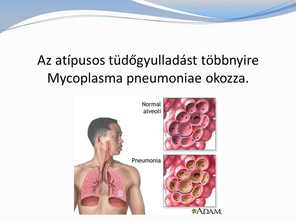 Az atípusos tüdőgyulladást többnyire Mycoplasma pneumoniae okozza.