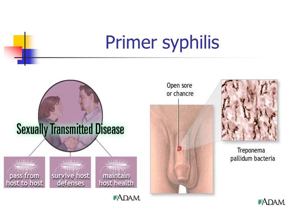 Primer syphilis