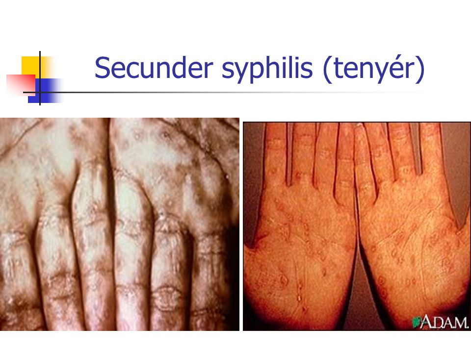 Secunder syphilis (tenyér)