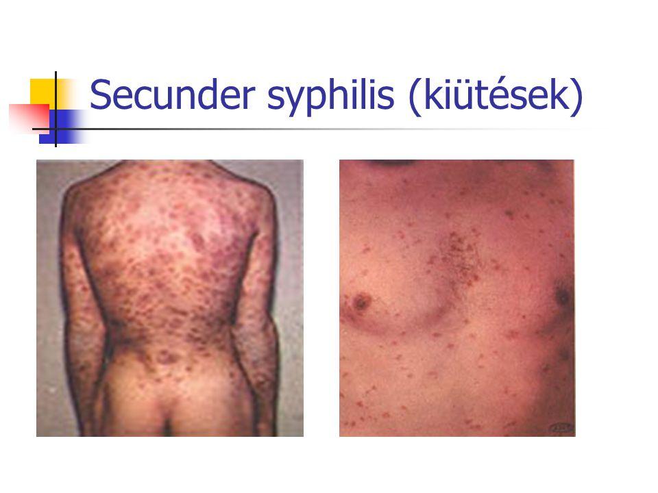 Secunder syphilis (kiütések)