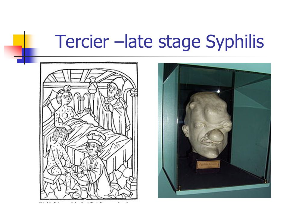 Tercier –late stage Syphilis