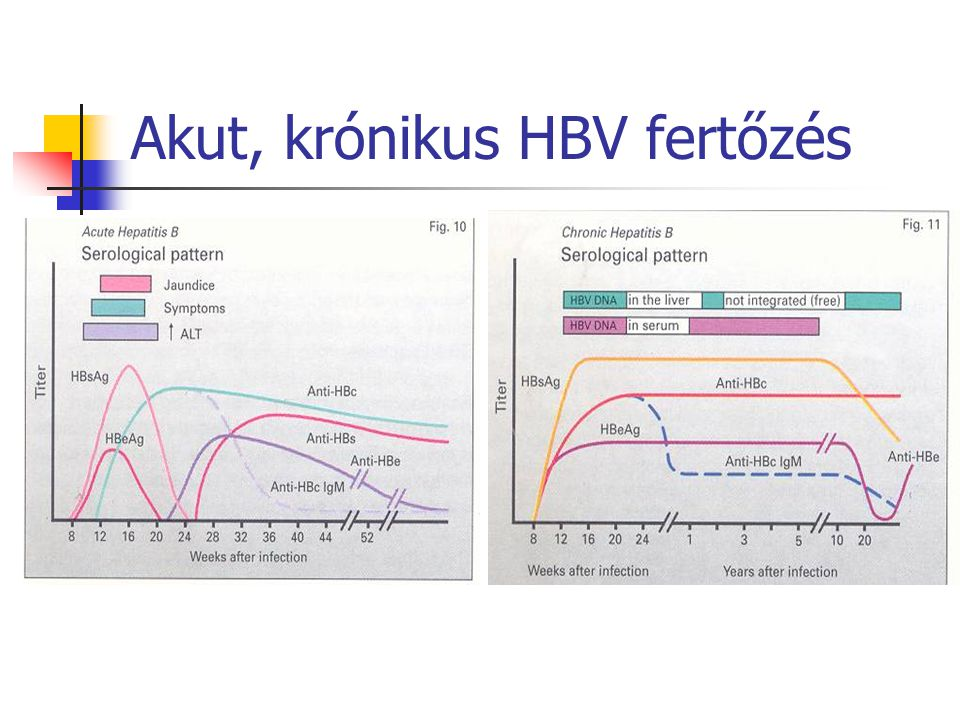 Akut, krónikus HBV fertőzés