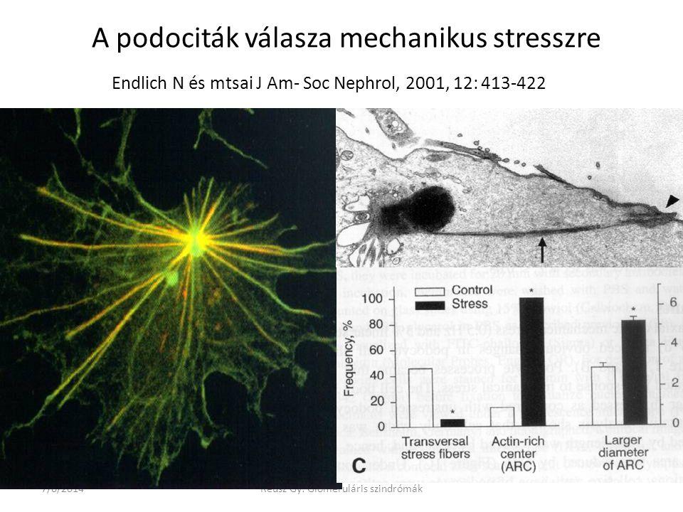A podociták válasza mechanikus stresszre