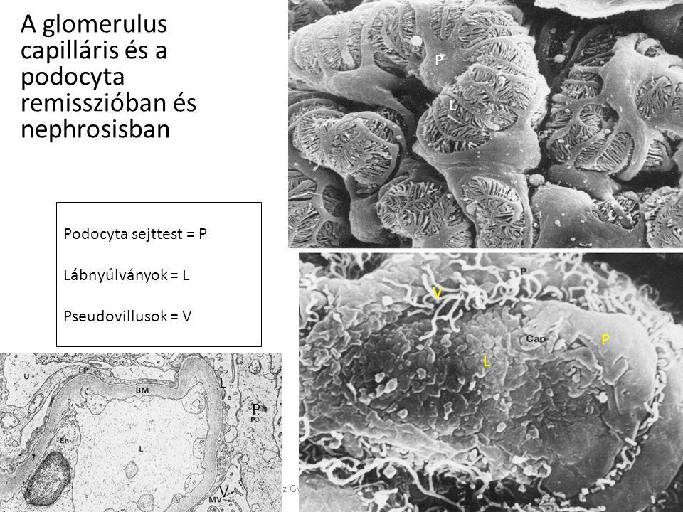 A glomerulus capilláris és a podocyta remisszióban és nephrosisban