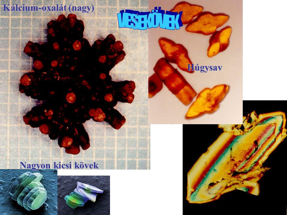VESEKÖVEK Kálcium-oxalát (nagy) Húgysav Nagyon kicsi kövek