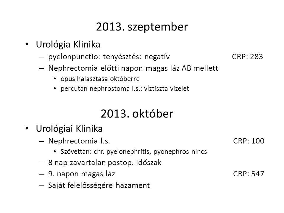 2013. szeptember 2013. október Urológia Klinika Urológiai Klinika