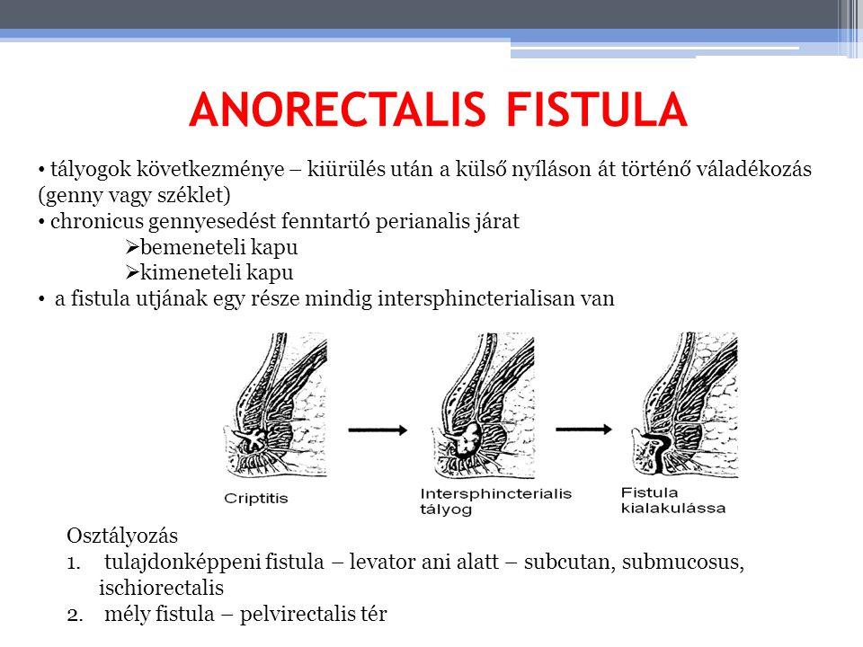 ANORECTALIS FISTULA tályogok következménye – kiürülés után a külső nyíláson át történő váladékozás (genny vagy széklet)